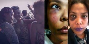 Suzi de Castro foi agredida fisicamente 2