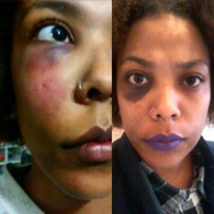 Suzi de Castro foi agredida fisicamente